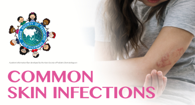 Common Skin Infections